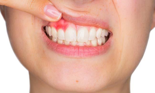 Лечение пародонтита: главное вовремя прийти в стоматологию